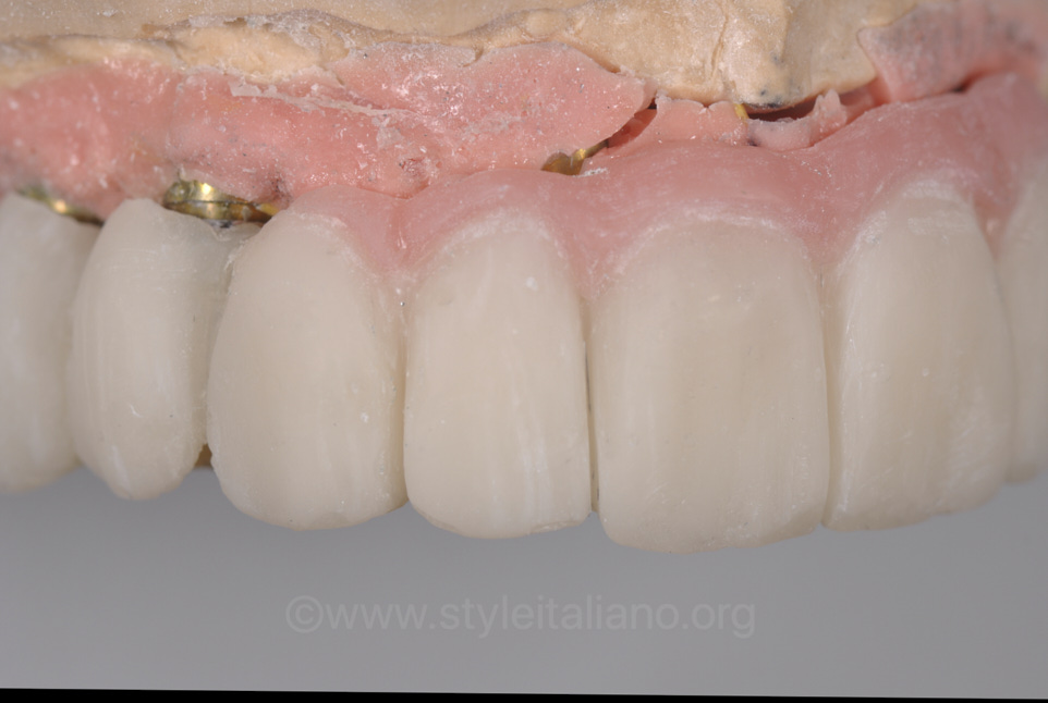 rough implant prosthesis