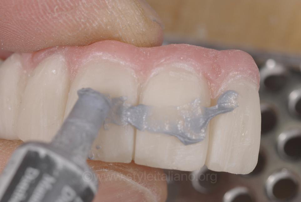 polishing paste on temporary prosthesis