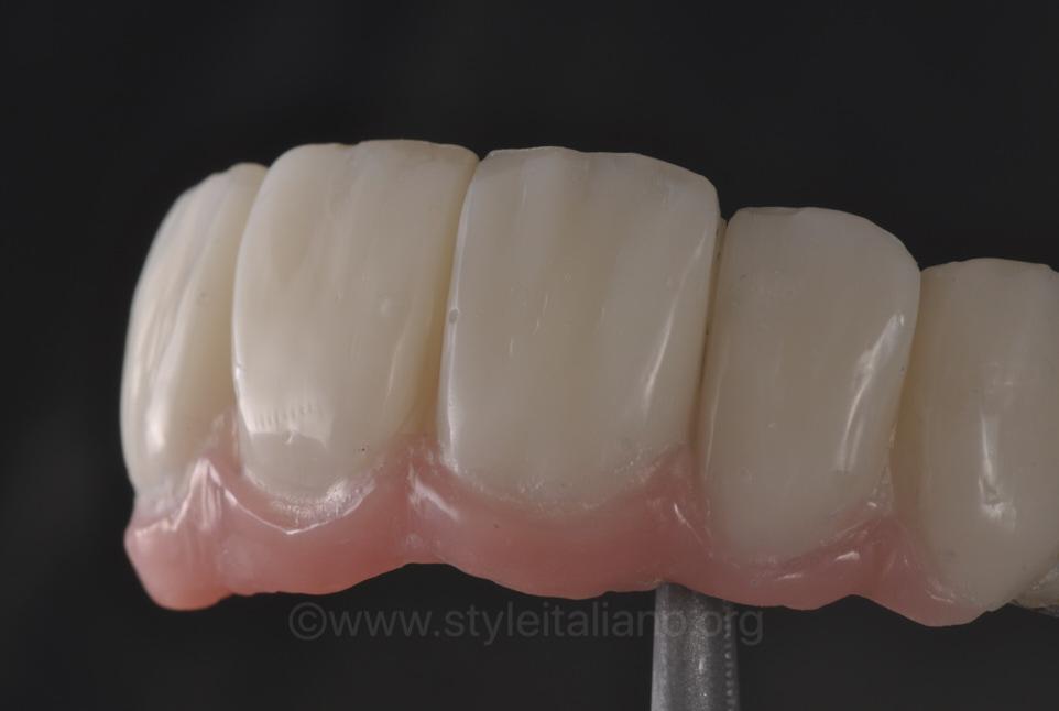 implant bridge with fake gums