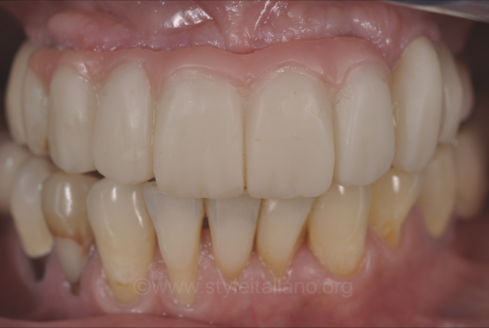provisional prosthesis with pink to fake gum