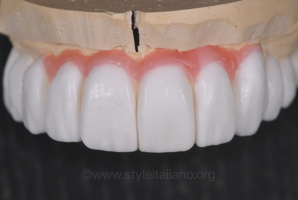 wax-up for implant supported fdp