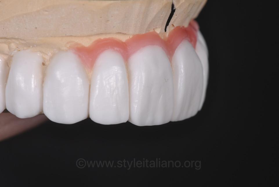 prostodontic wax up