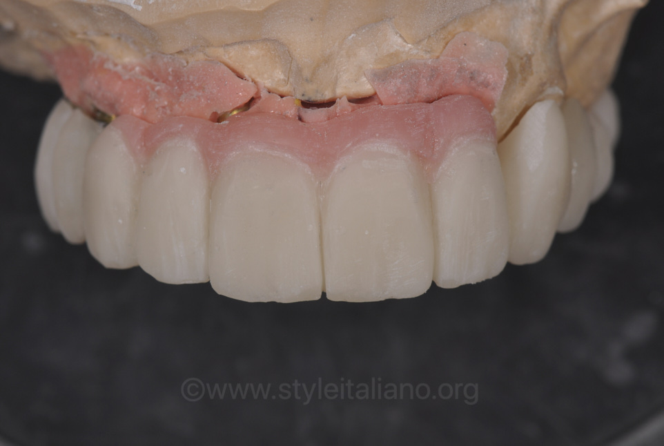 pink composite for provisional prosthesis
