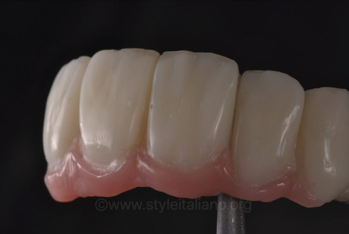 implant supported fdp