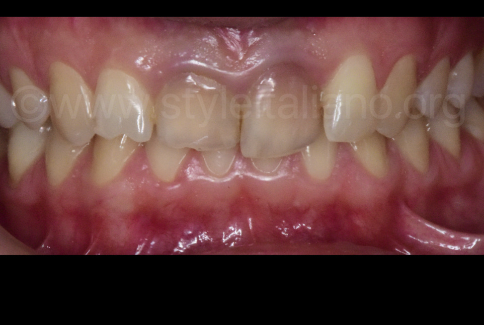 Intraoral situation