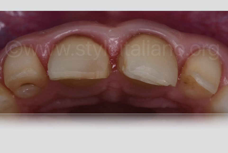 After preparation occlusal view