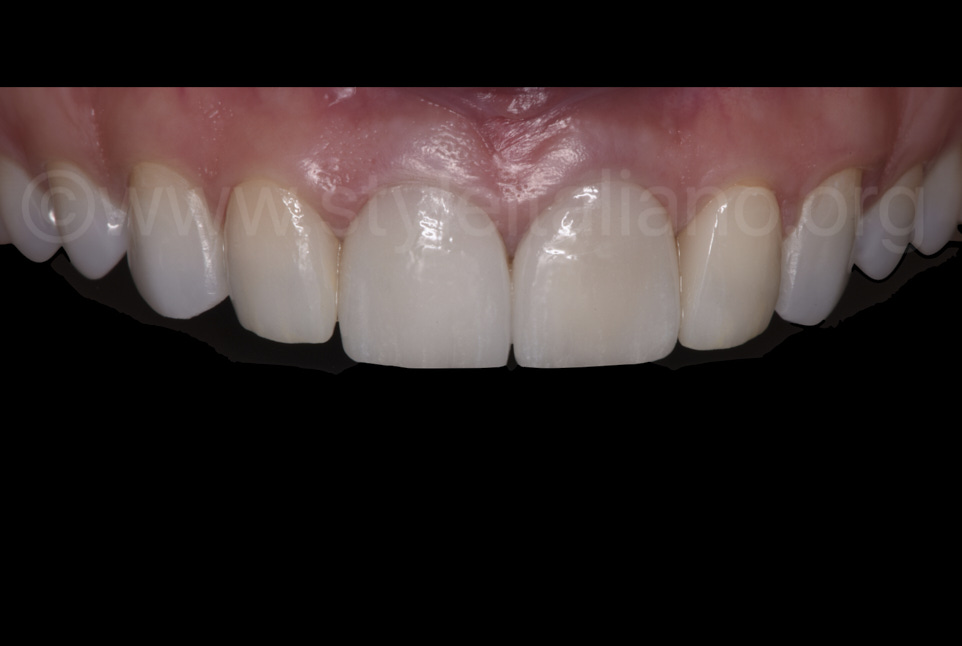 The final result after cementation