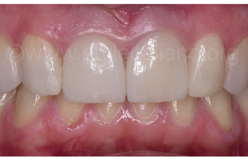 The perfect healing of the tissues over the veneers after 6 months