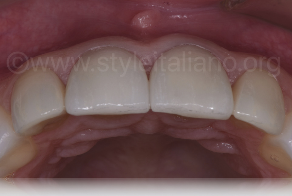 Final result occlusal view