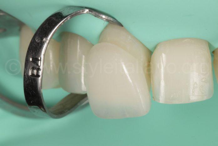 porcelain laminate veneers