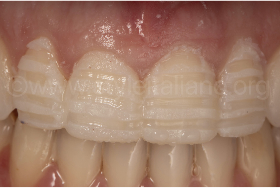 tooth preparation saving much tooth structure