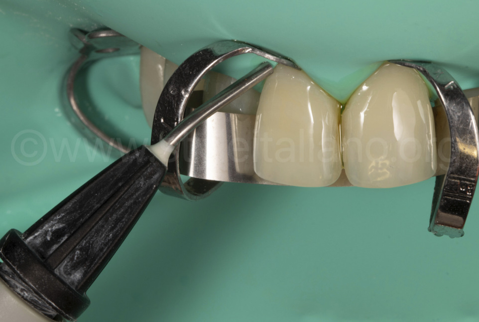 Microaspiration of the excess bonding in the gingival and interproximal area