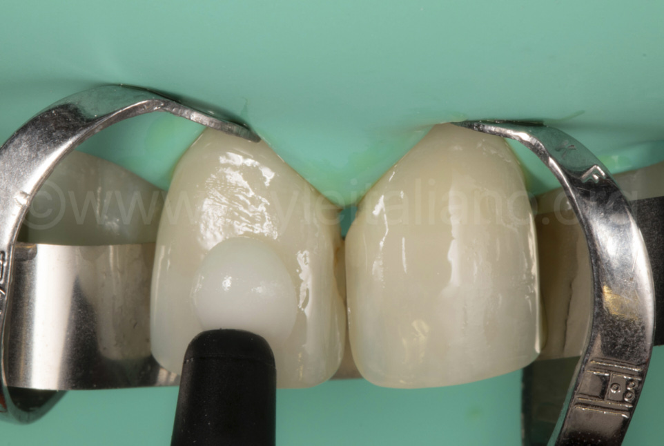 We apply it in the veneer and in the tooth