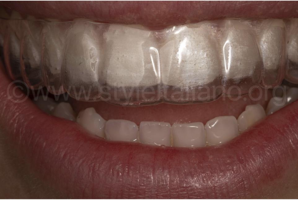 The orthodontic retainer