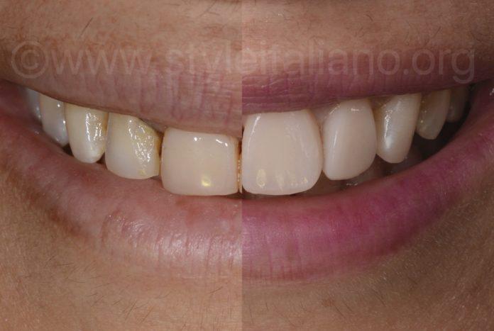 anterior composite restoration