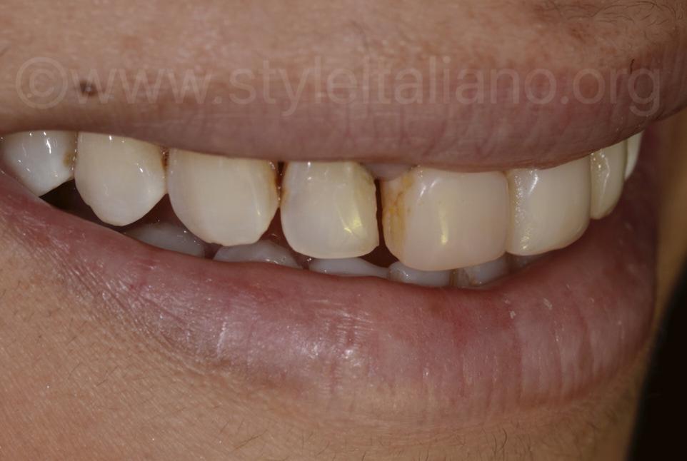 dark stained teeth
