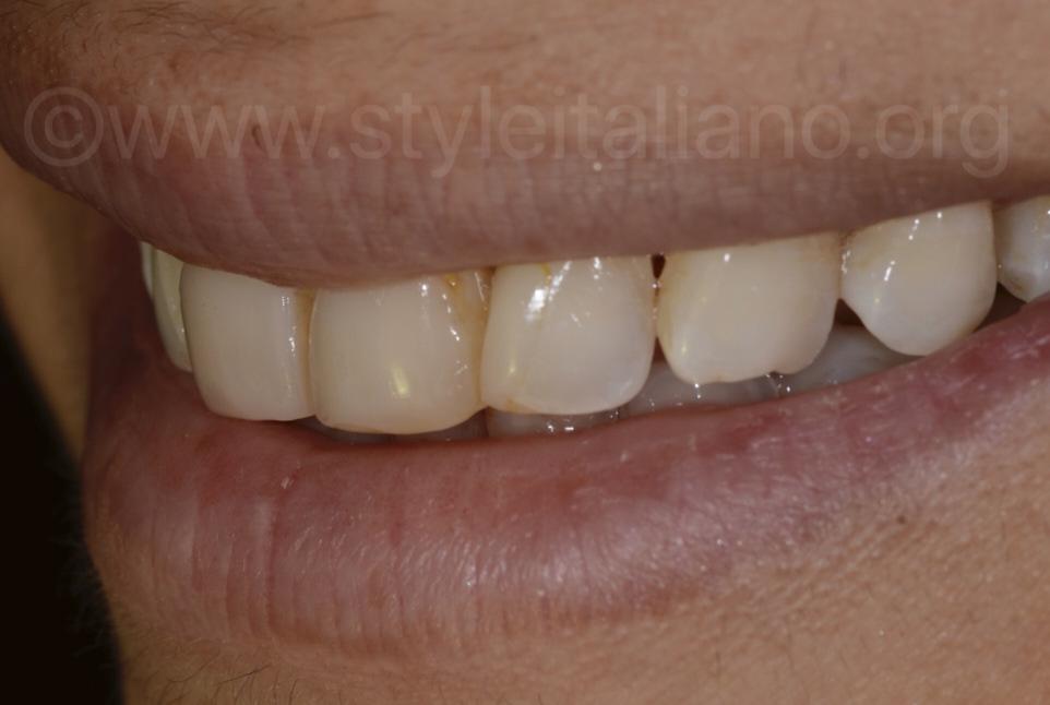dark and yellow teeth