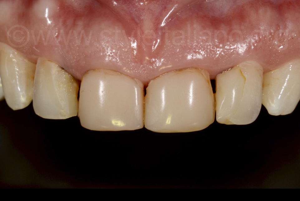 retracted view of old composite restorations