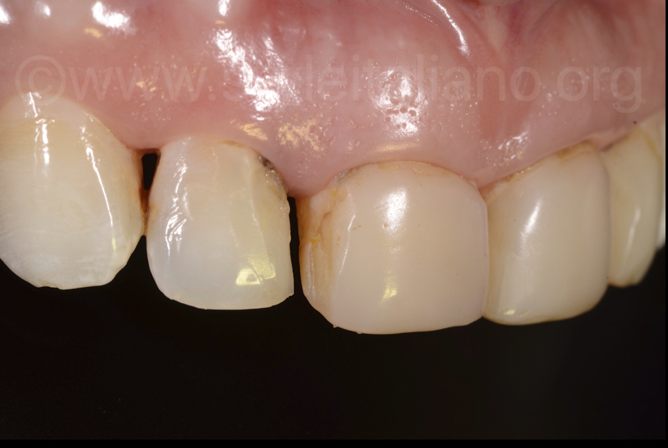 close-up of old stained composite distal tooth 11