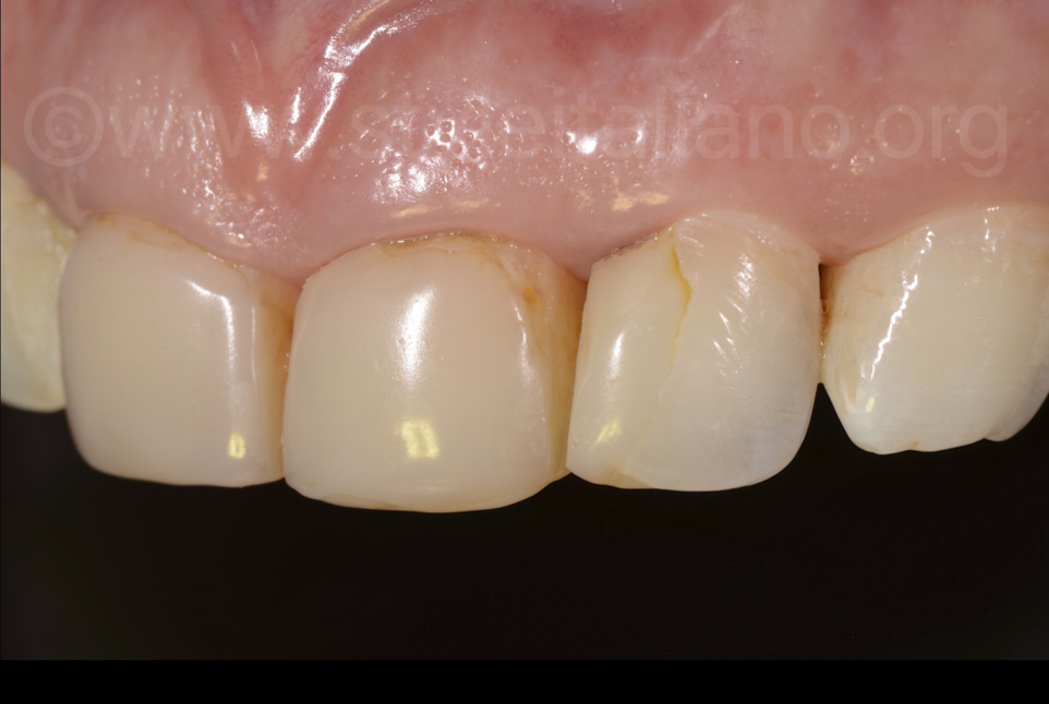 old rough composite restorations with leakage