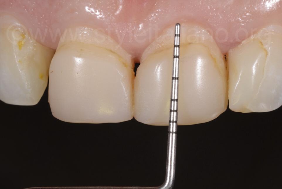 probe to measure incisor length