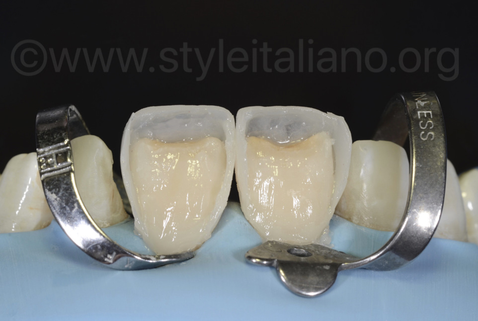palatal boxes for direct composite restorations