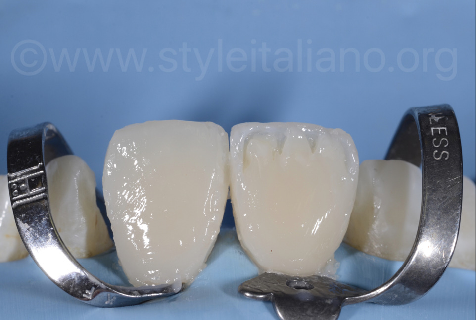 composite layering of central incisors