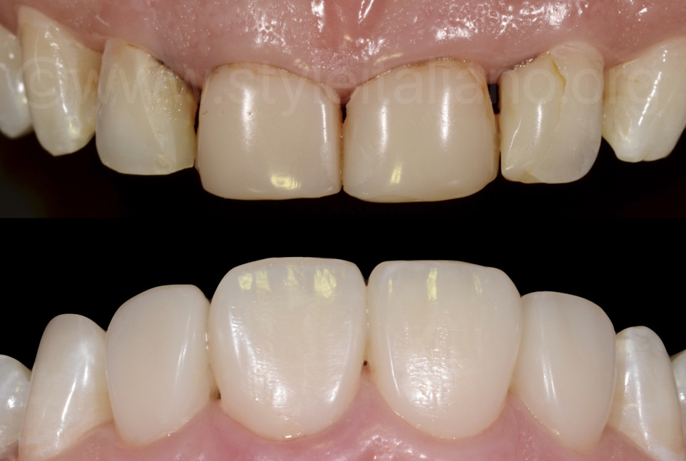 before and after front teeth restoration