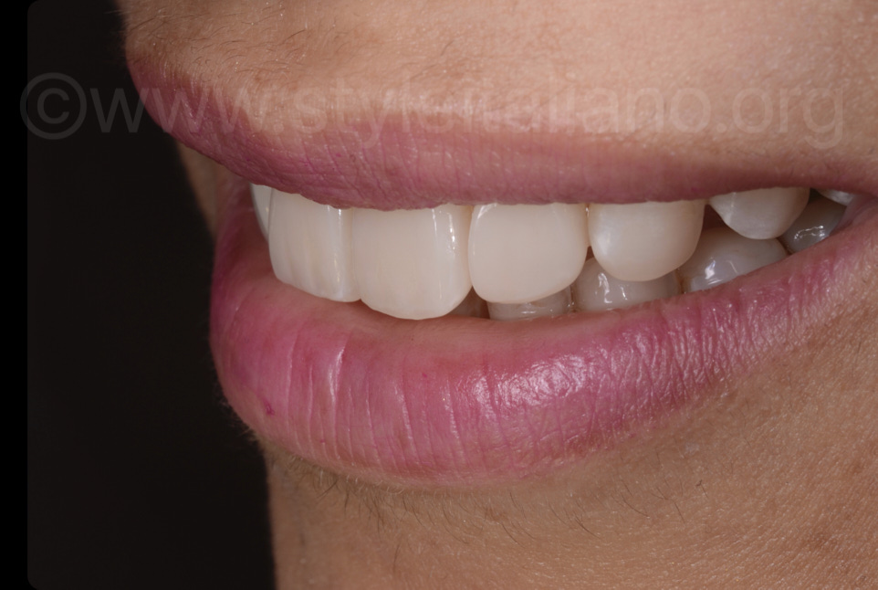 lifelike and seamless composite restorations on front teeth
