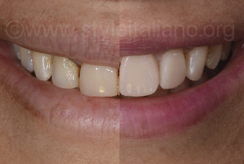 before and after crown lengthening and composite restorations smile