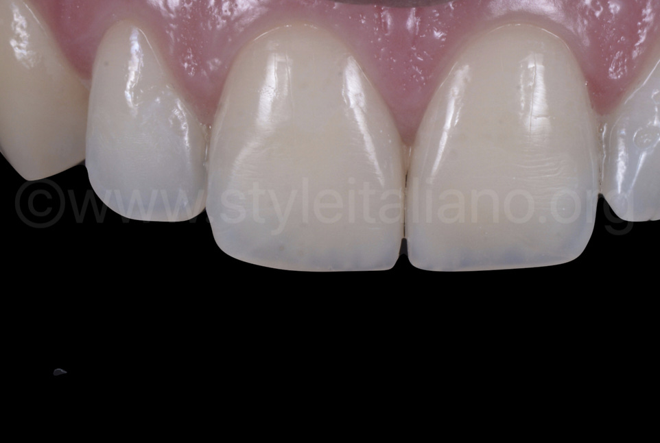 Incisors restored with direct composite technique