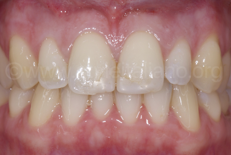 incisors with old class 4 composite restorations