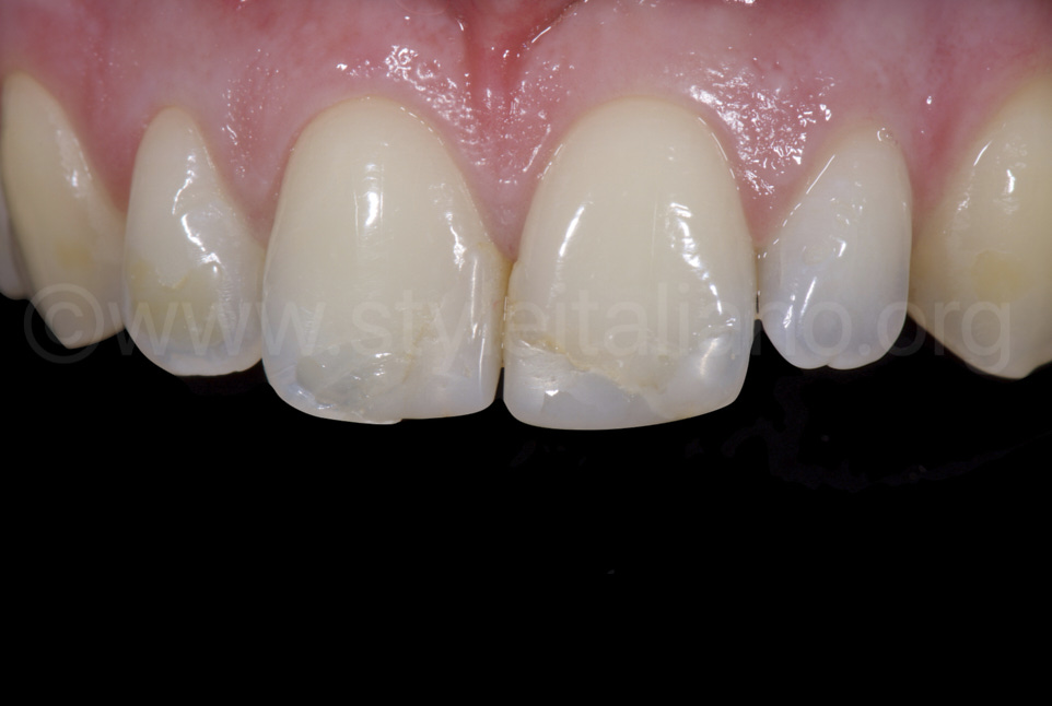 rough too bright composite fillings on incisors
