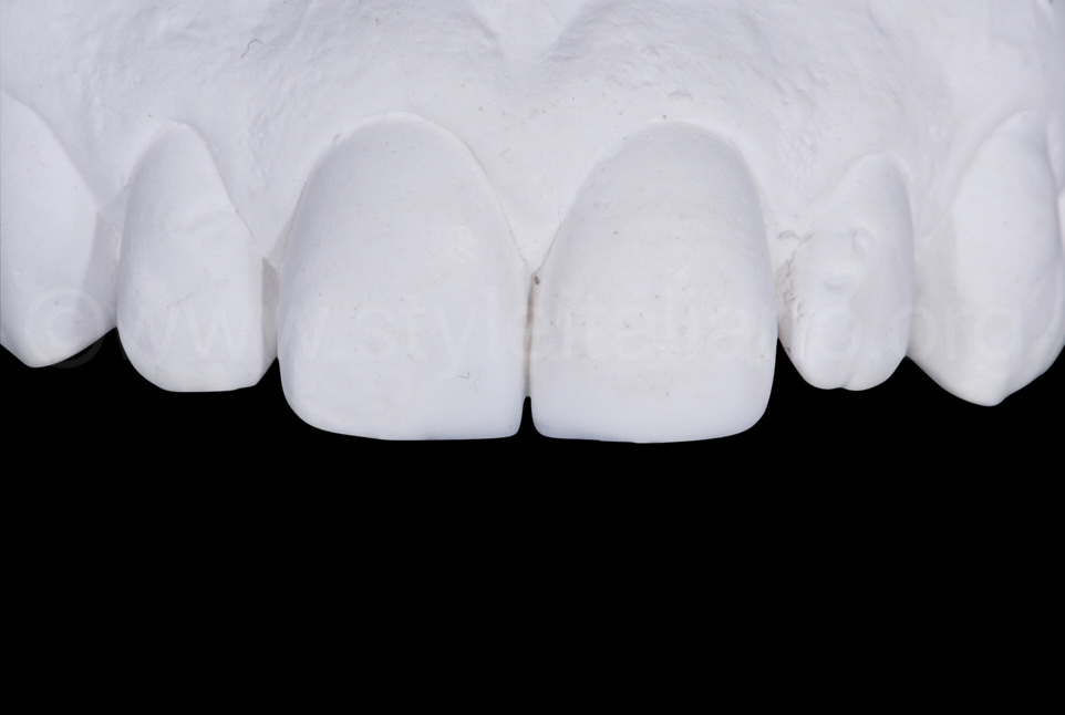wax up on cast model for central incisors