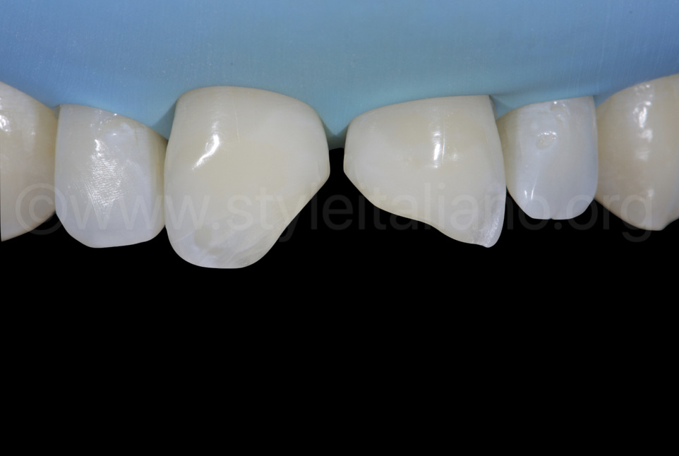prepared class IV cavities on central incisors