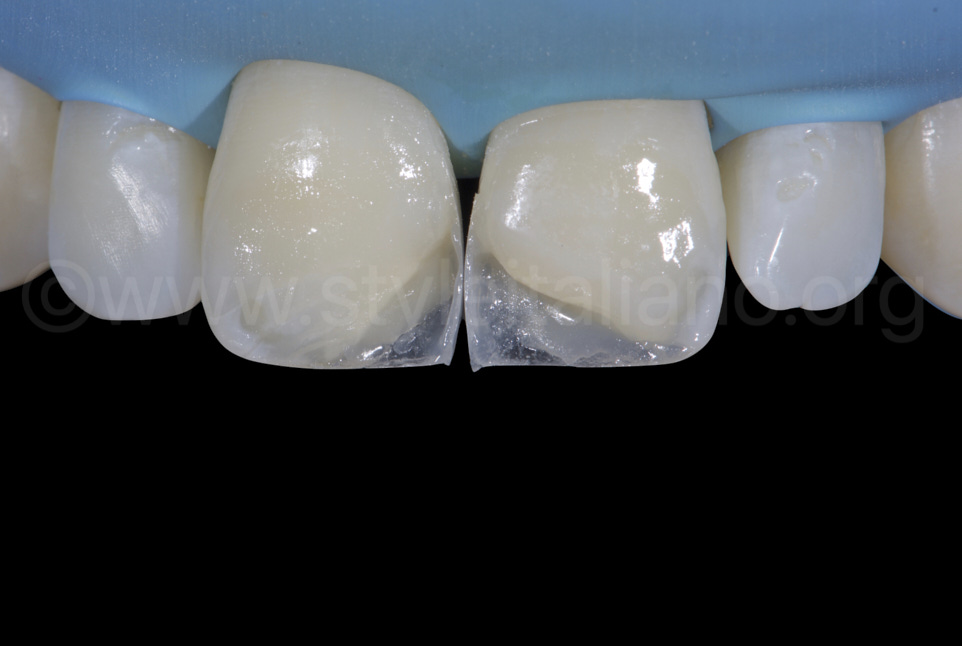 Proximal walls built with composite resin