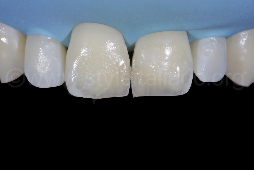opalescent mass layered in the incisal third