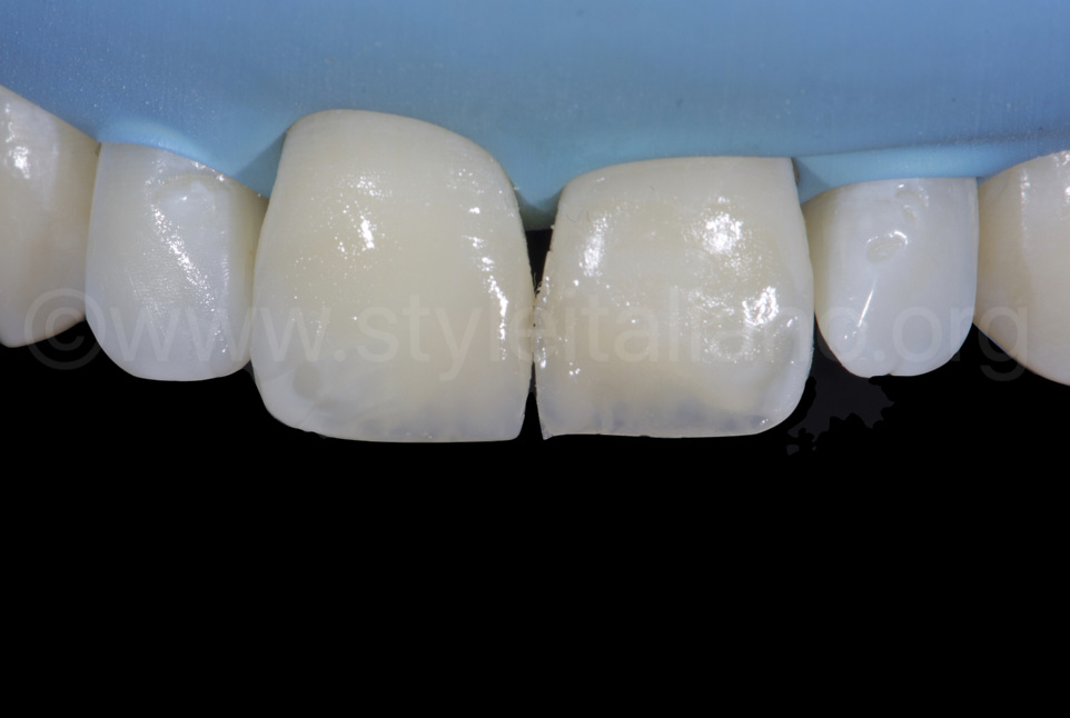 composite restorations on incisors before finishing