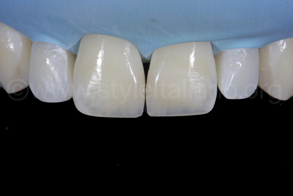 finished seamless composite restorations on centra incisors