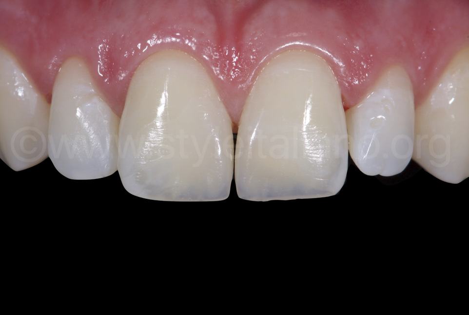 composite restoration of central incisors before rehydration