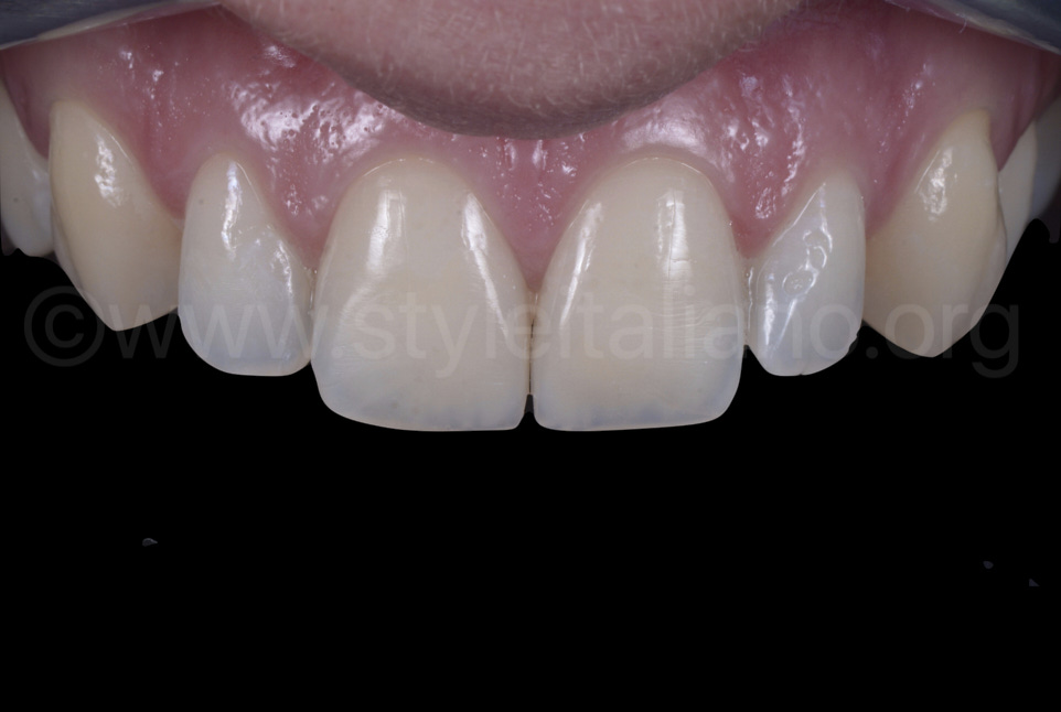 composite incisors after rehydration