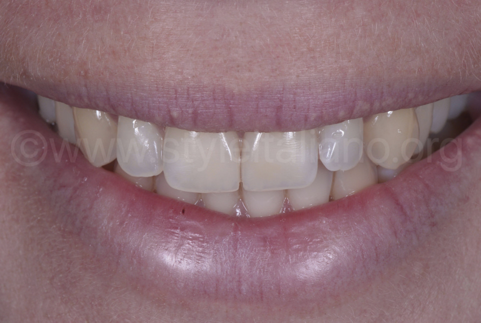 smile with invisible restored incisors
