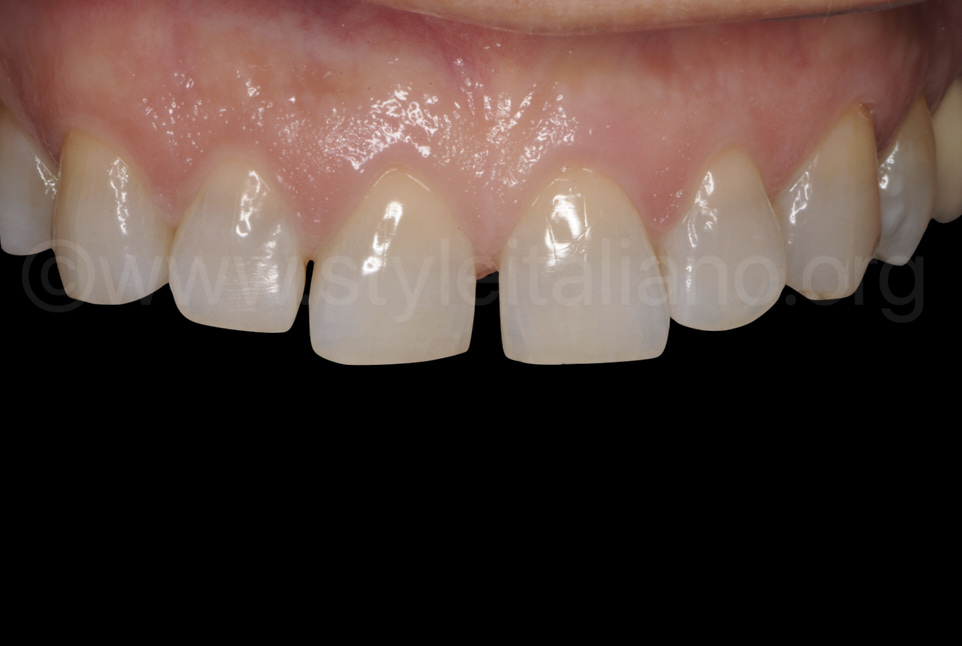 direct composite restoration diastema closure styleitaliano style italiano DMG