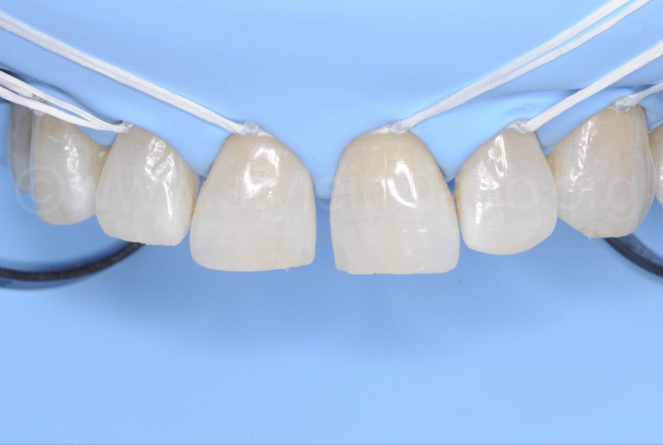 rubber dam isolation direct composite restoration diastema closure styleitaliano style italiano DMG