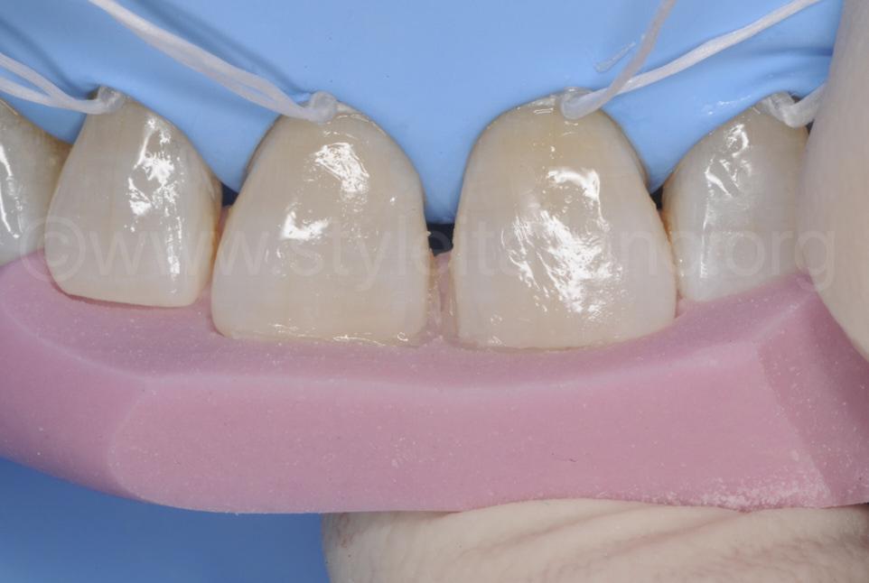 silicon index direct composite restoration diastema closure styleitaliano style italiano DMG