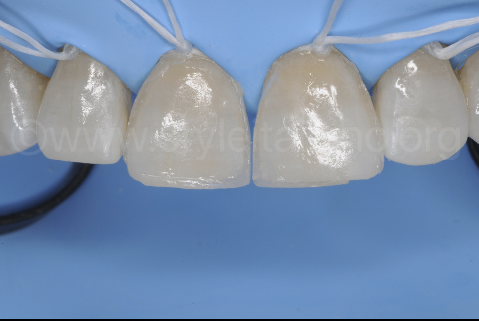 direct composite restoration diastema closure styleitaliano style italiano DMG