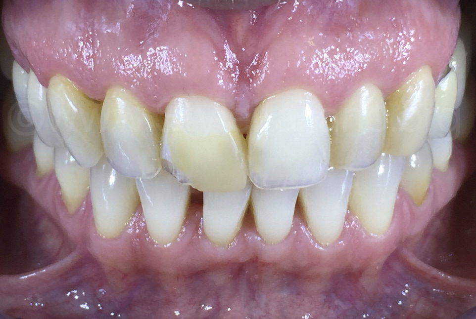 old restorations and chipped teeth