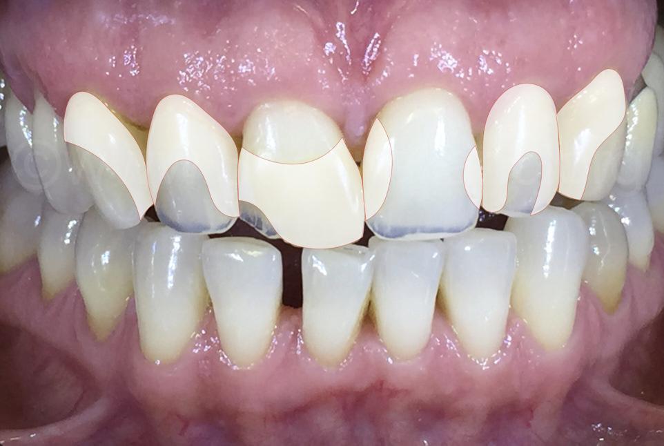 illustration outlining composite restorations on teeth