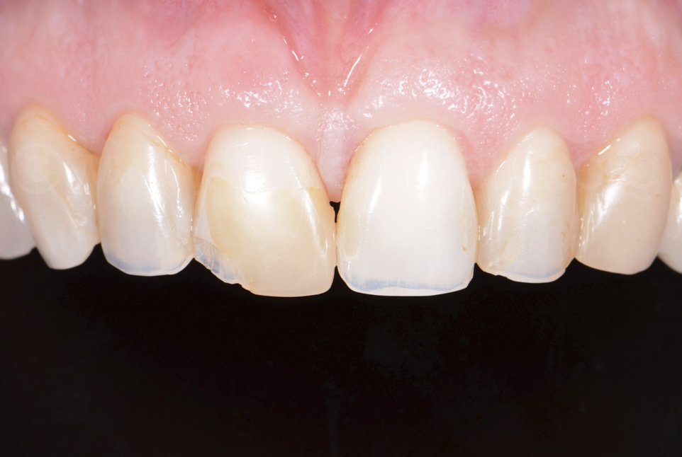 contrasted photo of old composite restorations