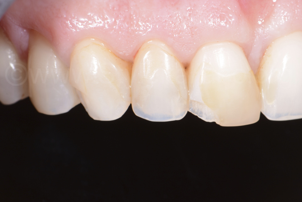 close up of old composite restoration on chipped central incisor